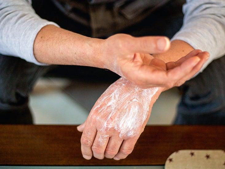 Psoriasis peeling skin on hands - vrindex.hu