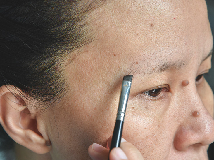 Eyebrow Hair Loss: 15 Causes and Treatments