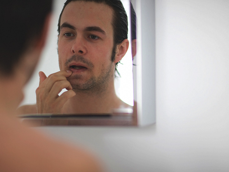 How To Prevent Pimples 14 Tips