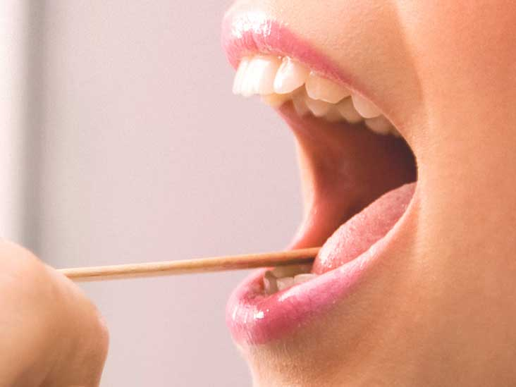 Green Tongue: Causes, Syndromes, and Treatment