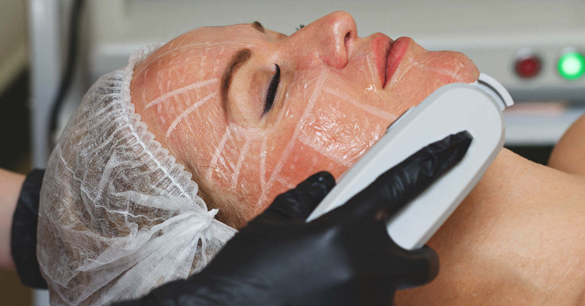 HIFU for Face Treatment: Benefits, Cost, Efficacy & More