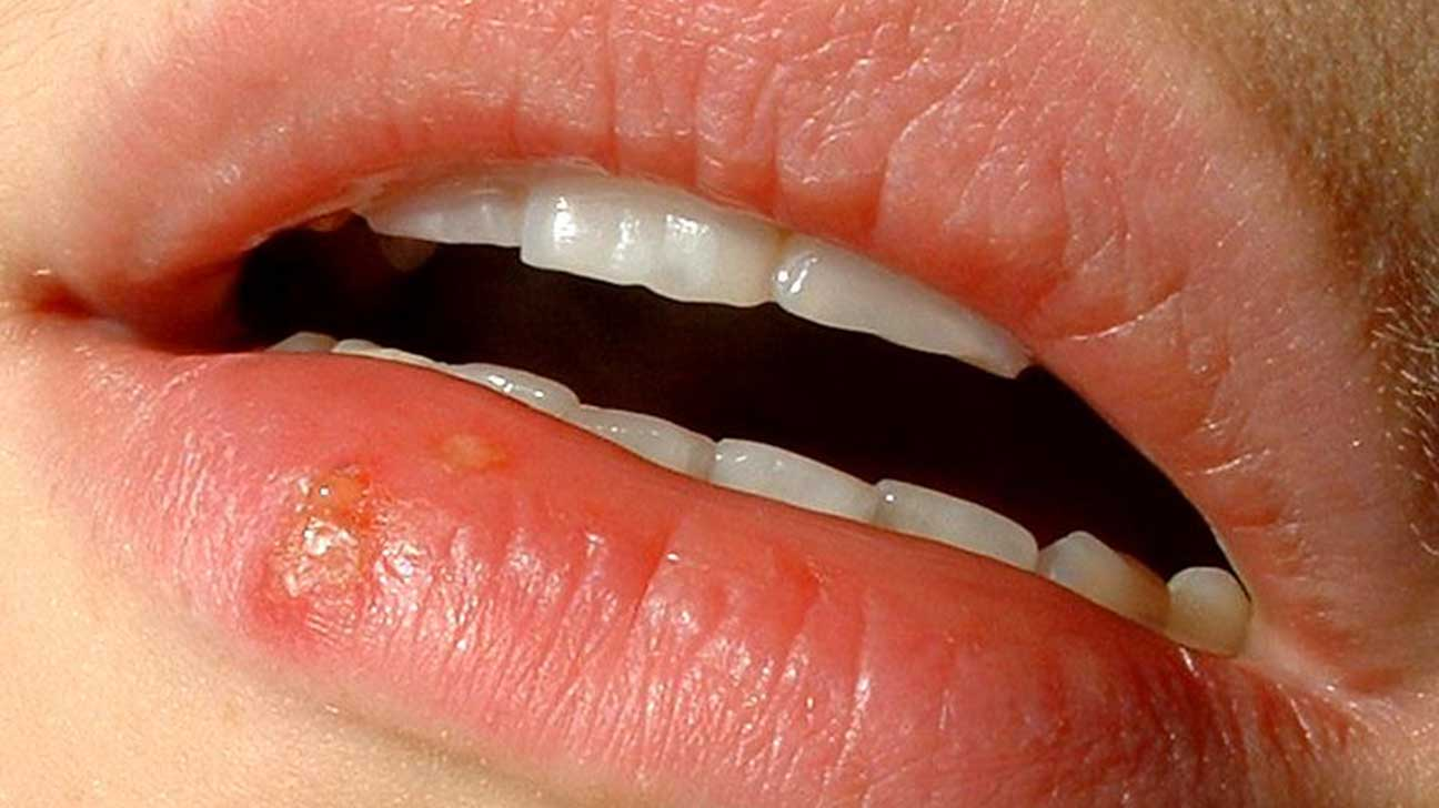 Canker Sore vs Cold Sore: What's the Difference?