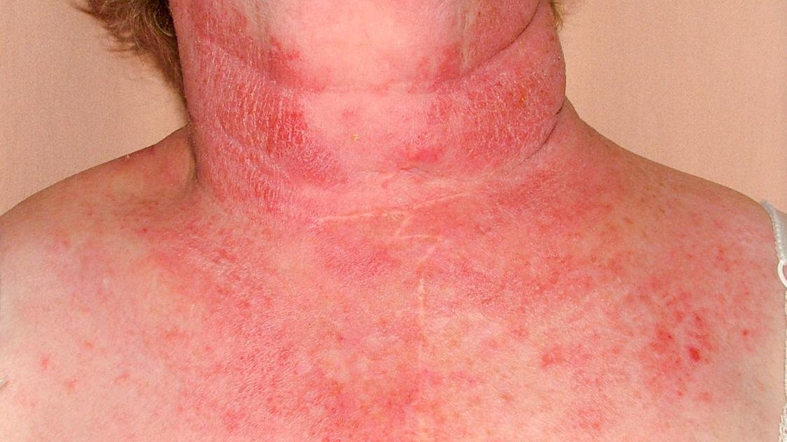 hpv neck rash