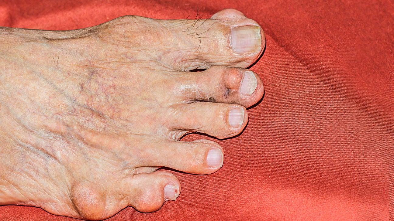 Rheumatoid Nodules Causes Symptoms And Treatments