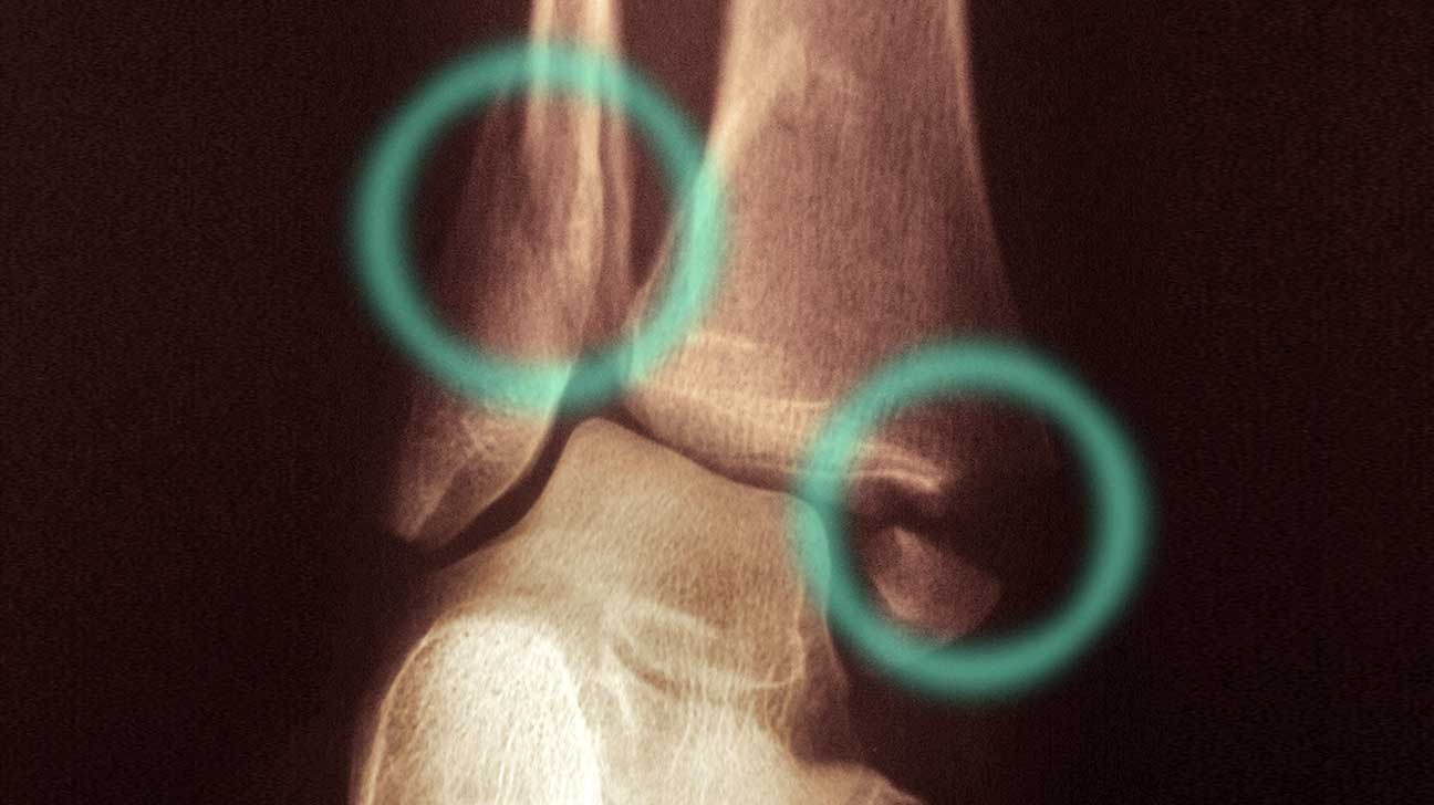 Broken Ankle Symptoms, Causes, Pictures, Treatments, and Rehab