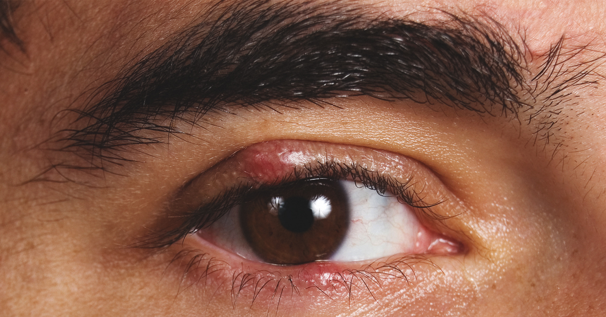 how to cure a stye in my eye
