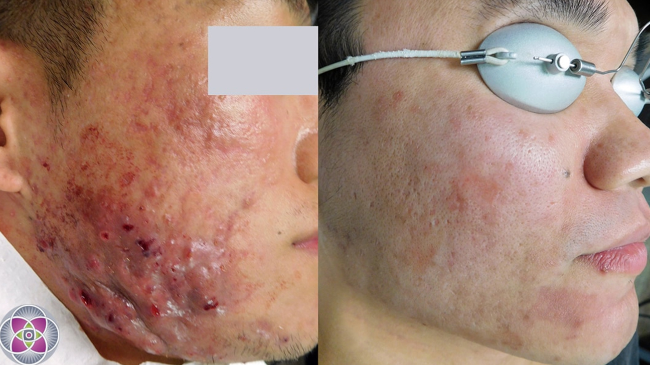Led Light Therapy Efficacy Procedure And What To Expect