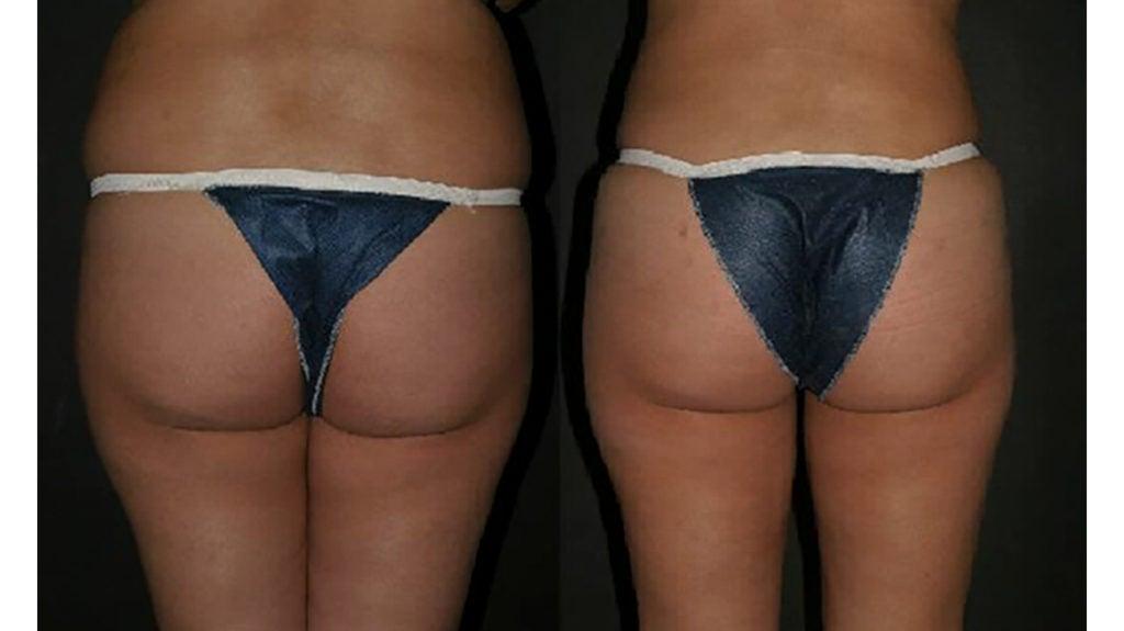 Brazilian Butt Lift Procedure Benefits Side Effects And Cost
