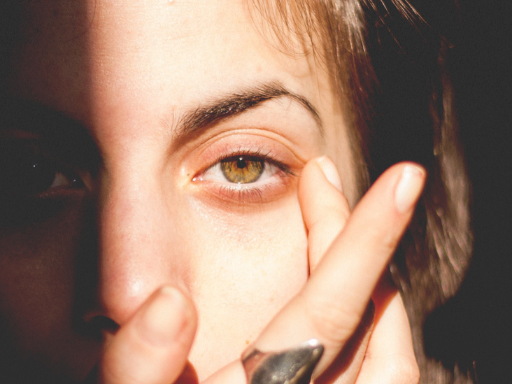 Sunburned Eyes: Causes, Symptoms, and Treatment