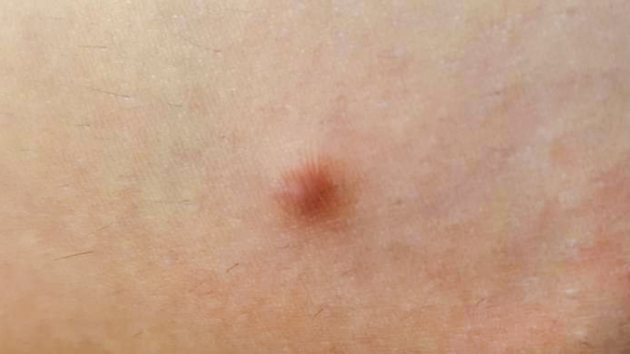 Hard Lump Under Skin: 8 Causes and How They're Treated