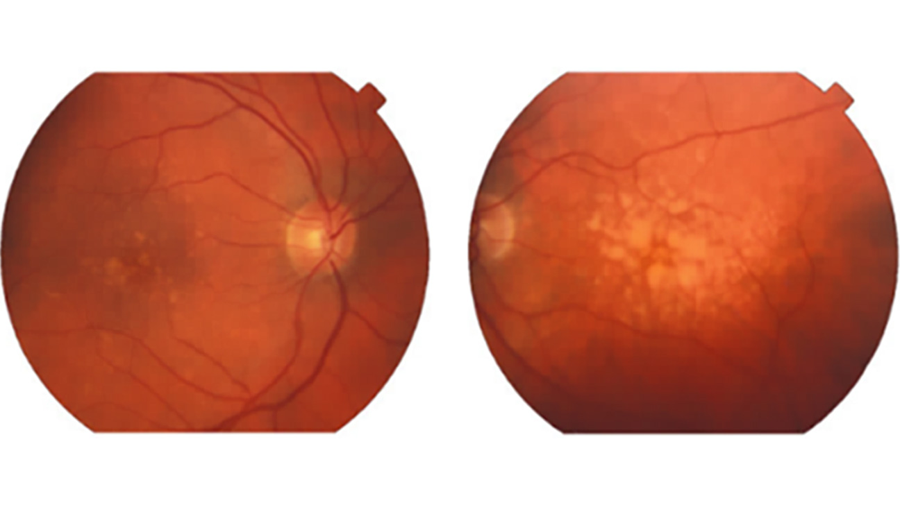 Drusen In Eyes Causes Treatment And Macular Degeneration