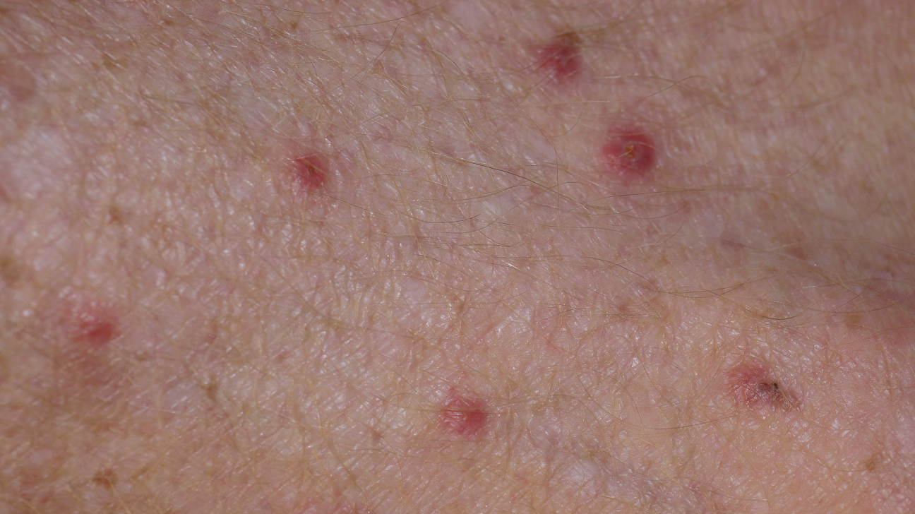 Bed Bug Bites Vs Mosquito Bites Telling Them Apart