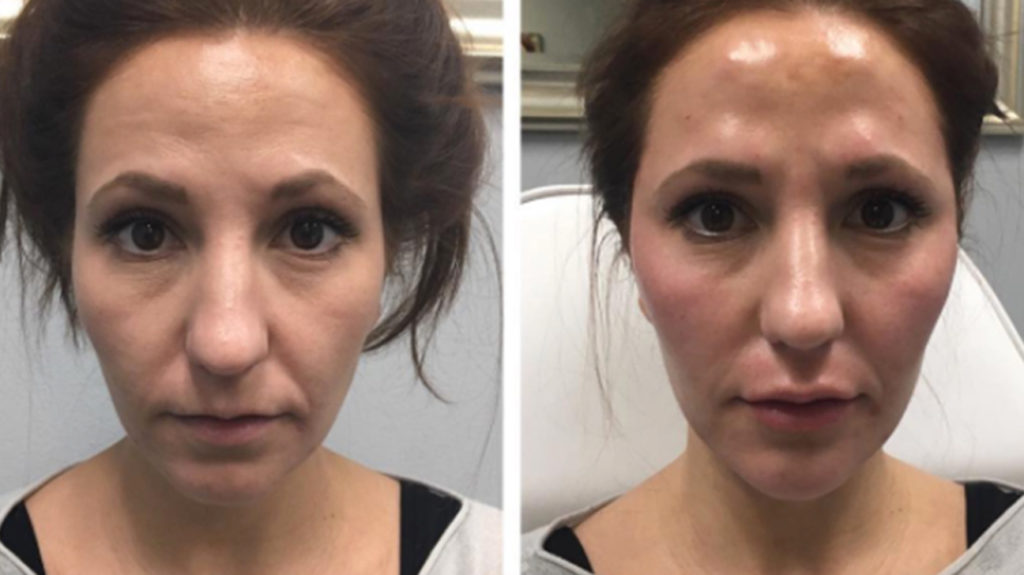 Sculptra Cost: By Vial, Procedure & Compared to Similar