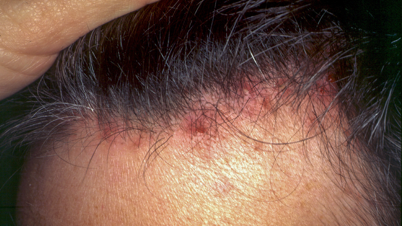 Natural scalp treatment acne How To