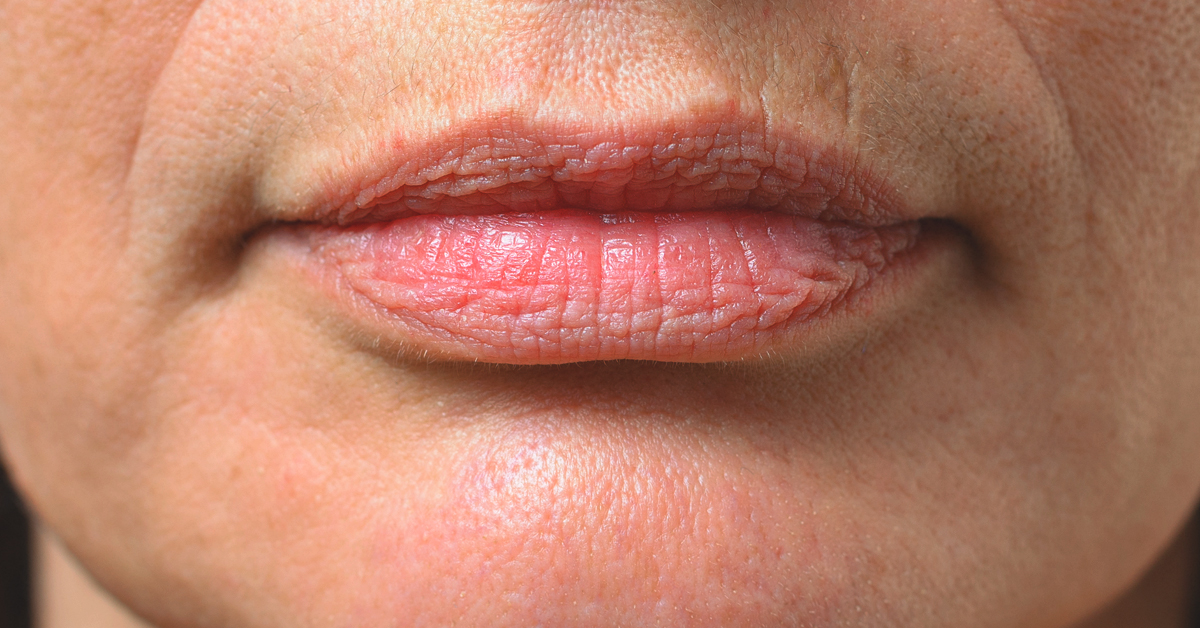 Smoker's Lips: Why You Get Them, How You Can Make Them Go Away