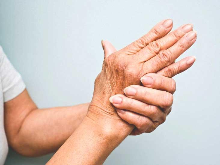 arthritis psoriatica sintomas)