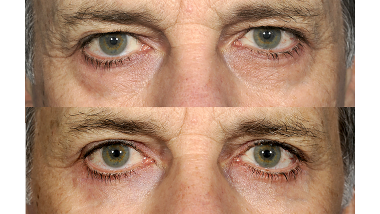 Eye Bag Surgery Costs Benefits Risks Recovery Time And More