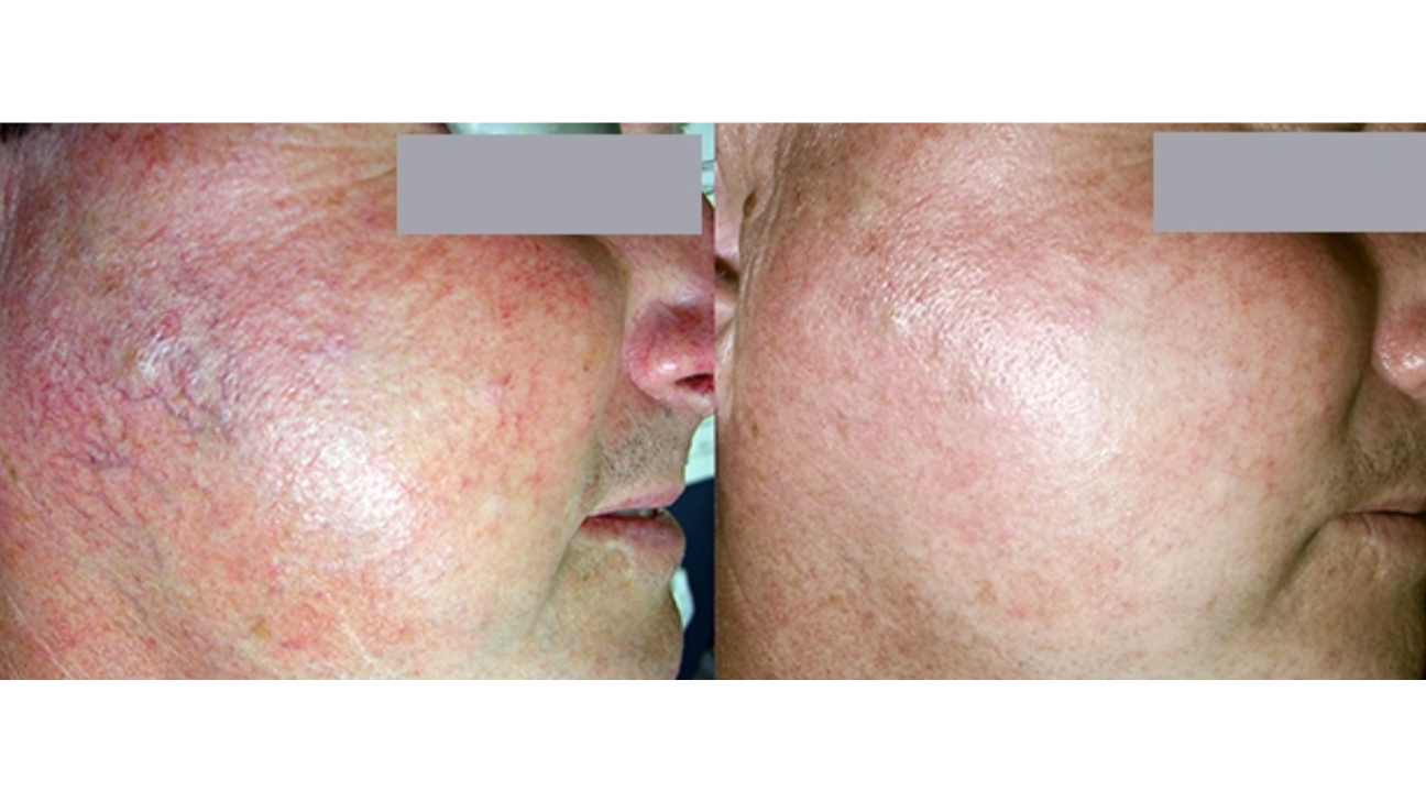 Laser Treatment For Rosacea Types Efficacy Side Effects And More
