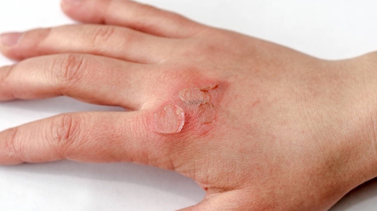 Skin Tear Treatment, Prevention, Pictures, and Best Practices