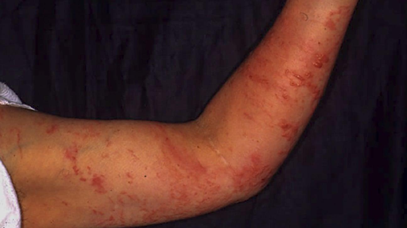 Poison Oak Vs Posion Ivy Rashes Symptoms And More,Transplanting