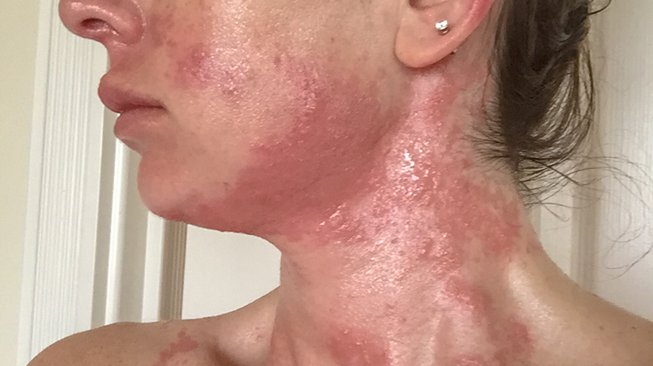 Mango Mouth Rash Pictures
