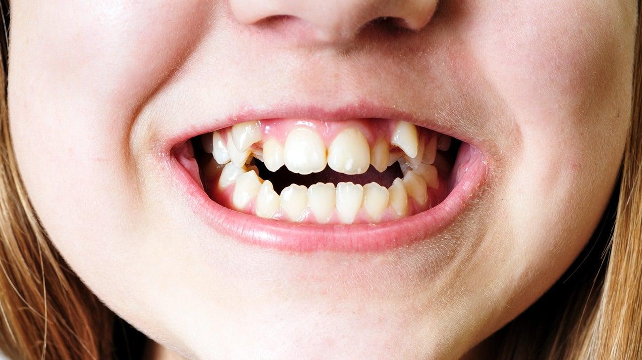 Crowded-teeth-1296x728-gallery_slide3.jpg
