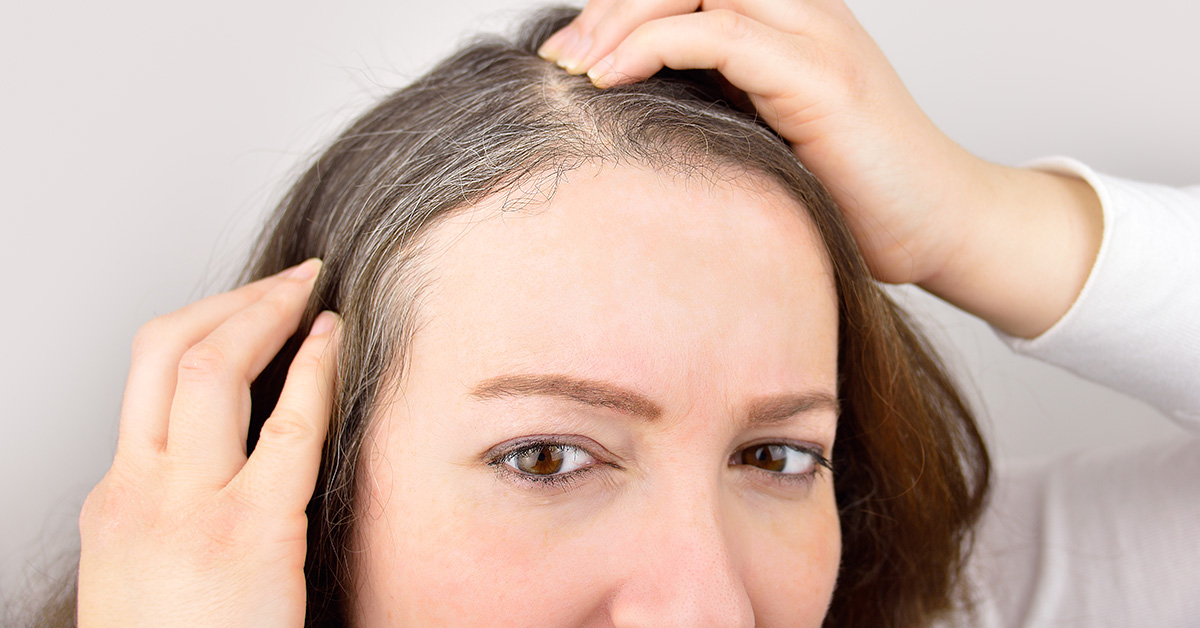 Mole on Scalp: Types of Moles, Risks, and Warning Signs of