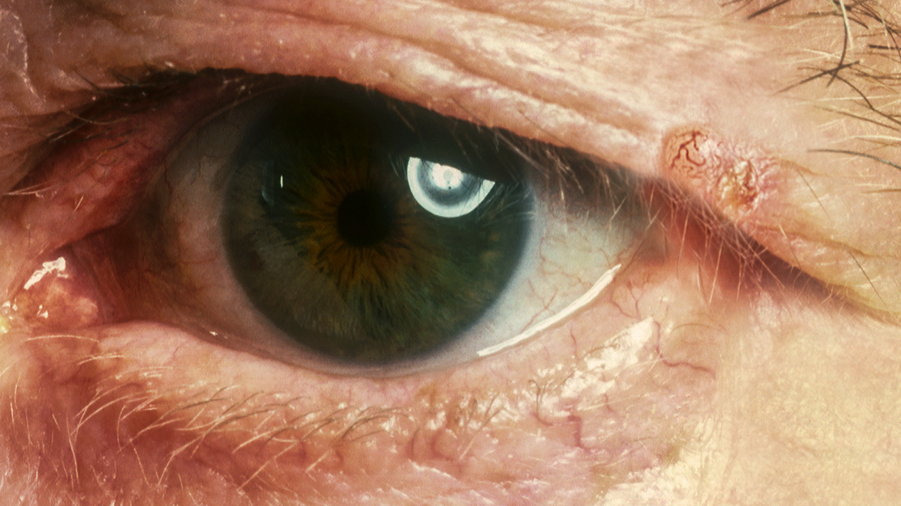 Lump on Eyelid: Is It Cancer or Something Else?
