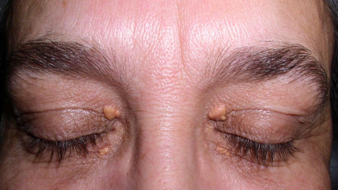 Lump On Eyelid Is It Cancer Or Something Else