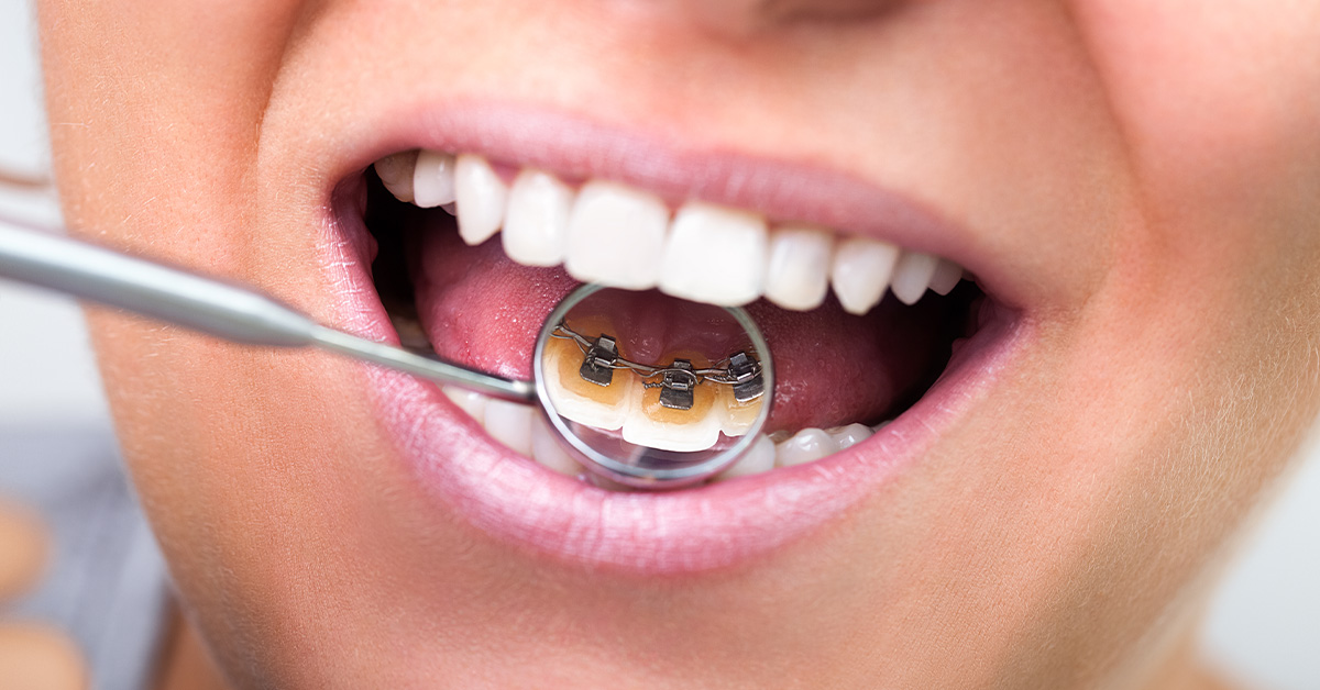 Some Ideas on How Do Braces Work You Need To Know