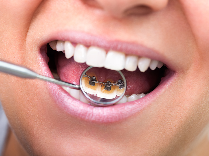 How to Floss with Braces: Methods, Tips, and More
