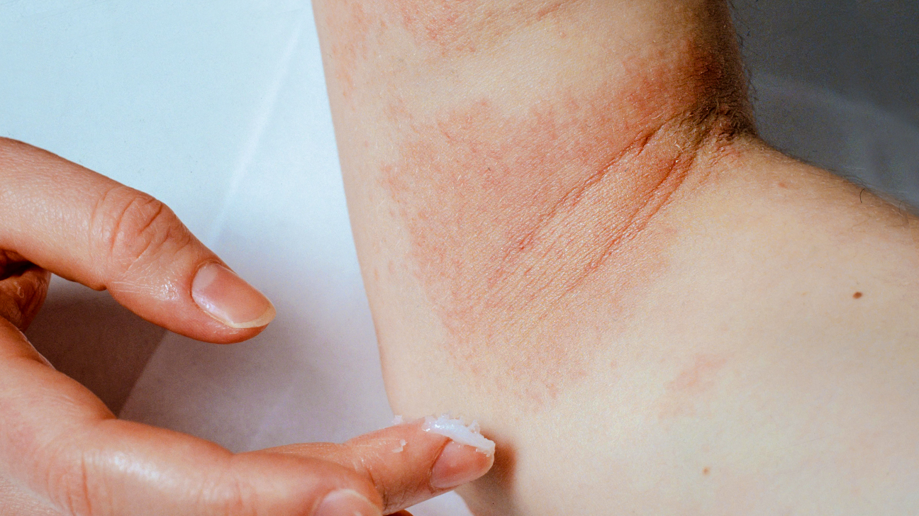 Dry Skin Patches: Causes, Pictures, Treatment, Prevention & More
