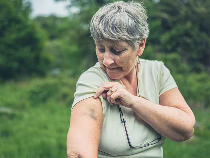 Bone Bruise: Symptoms, Treatment, and More