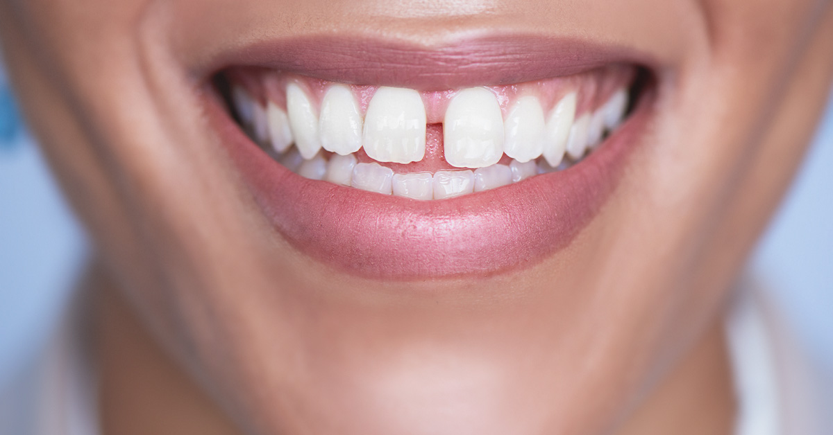 Gingivectomy: What to Expect, Recovery, Cost, and More