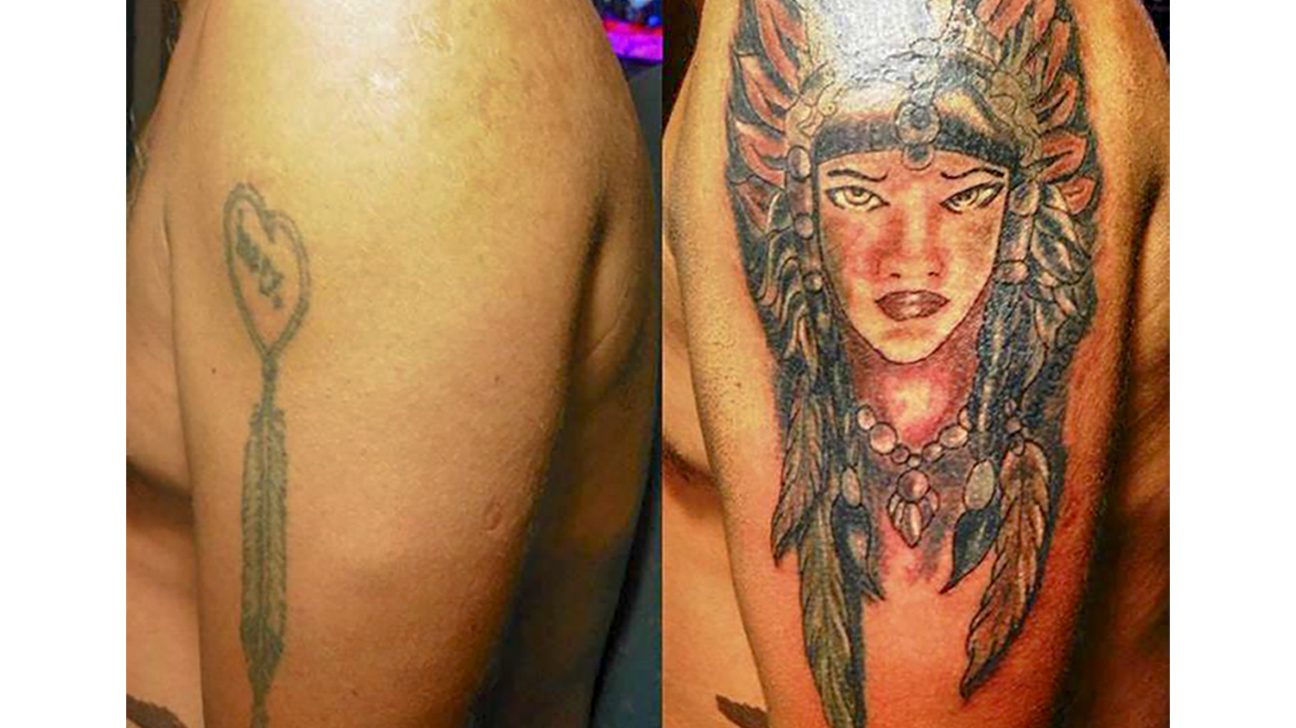 Tattoo Removal How To Costs Before And After Pictures More