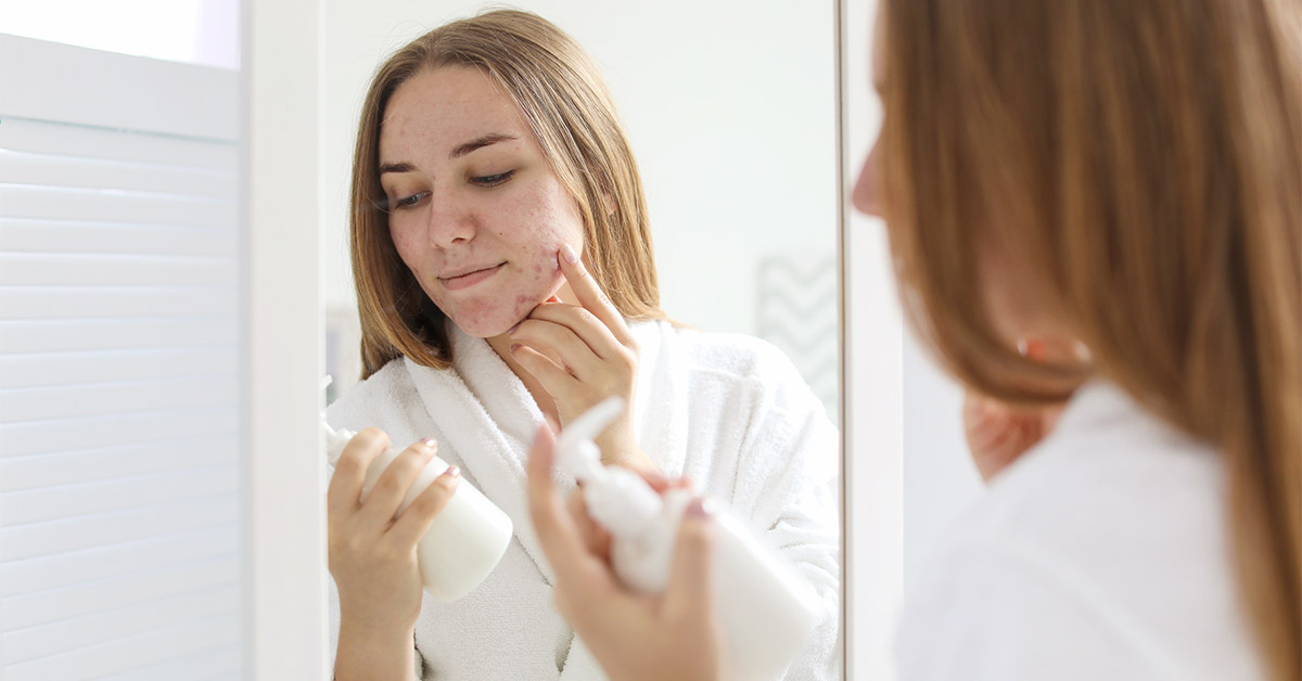 Dry Skin and Acne: Causes, Treatments, Home Remedies, and More