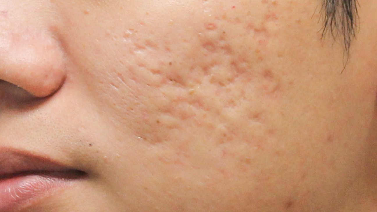 Types Of Acne Scars Pictures Of Boxcar Icepick Rolling And More