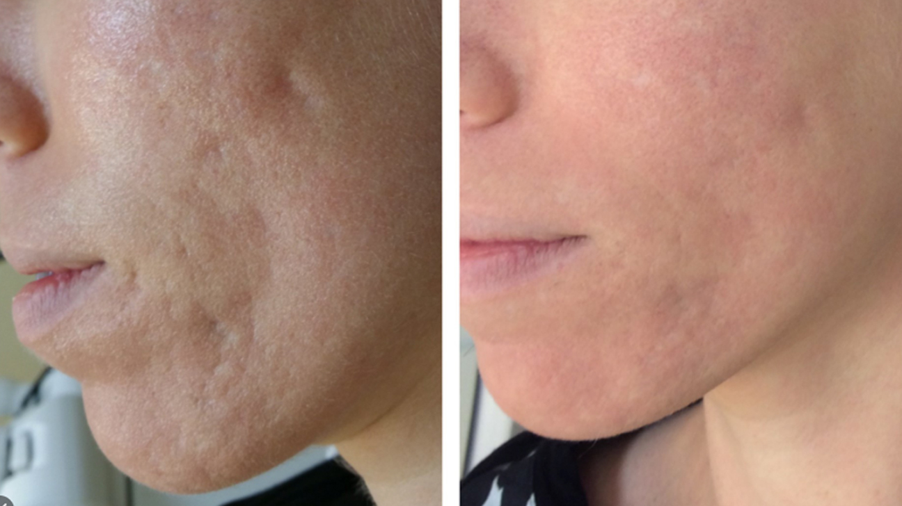 Laser Treatment For Acne Scars What To Expect Cost And More