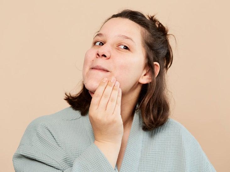 Azelaic Acid For Acne Uses Benefits And Precautions