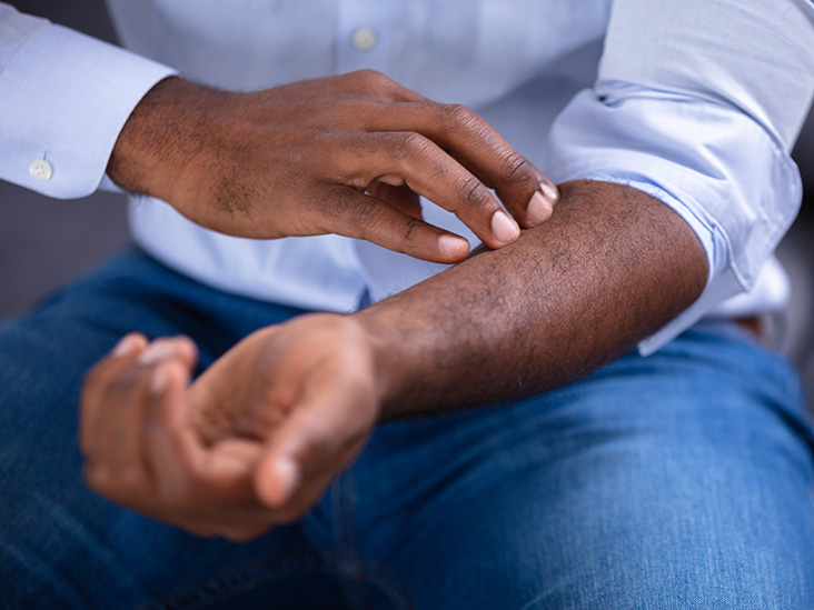 Liver Disease And Itching Causes Treatment When To See A Doctor
