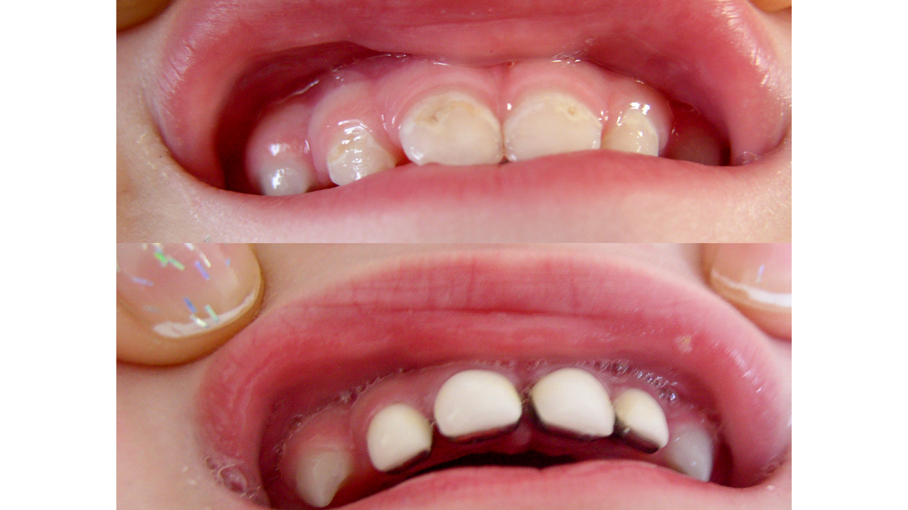 Image result for What are the main factors to get a Dental Crown