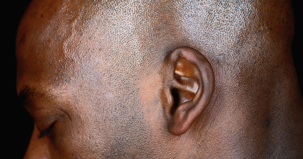Crackling in Ear: Causes, Symptoms, Remedies, Treatment
