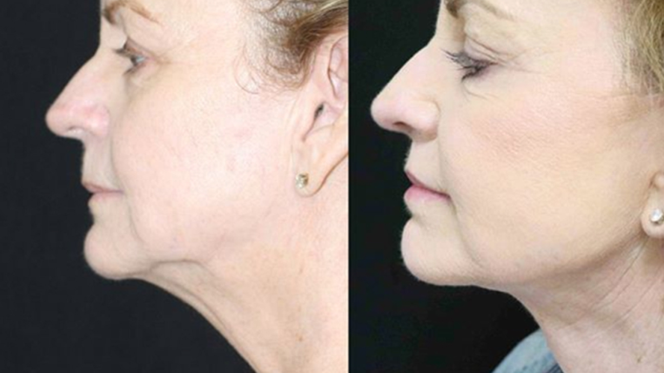 Double Chin Surgery What To Expect Cost Recovery More