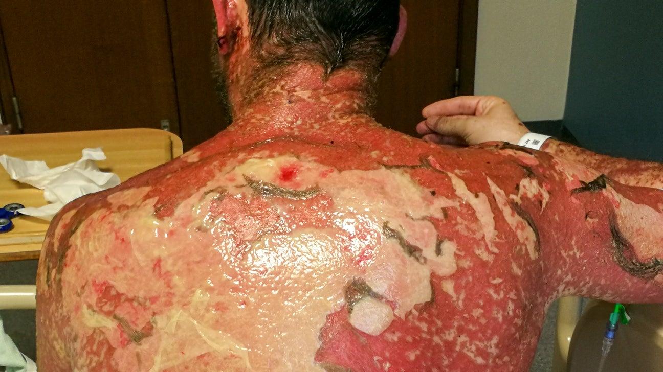 toxisk epidermal nekrolyse