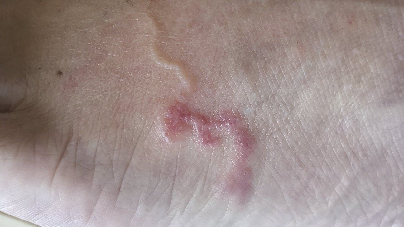 giardia skin manifestations