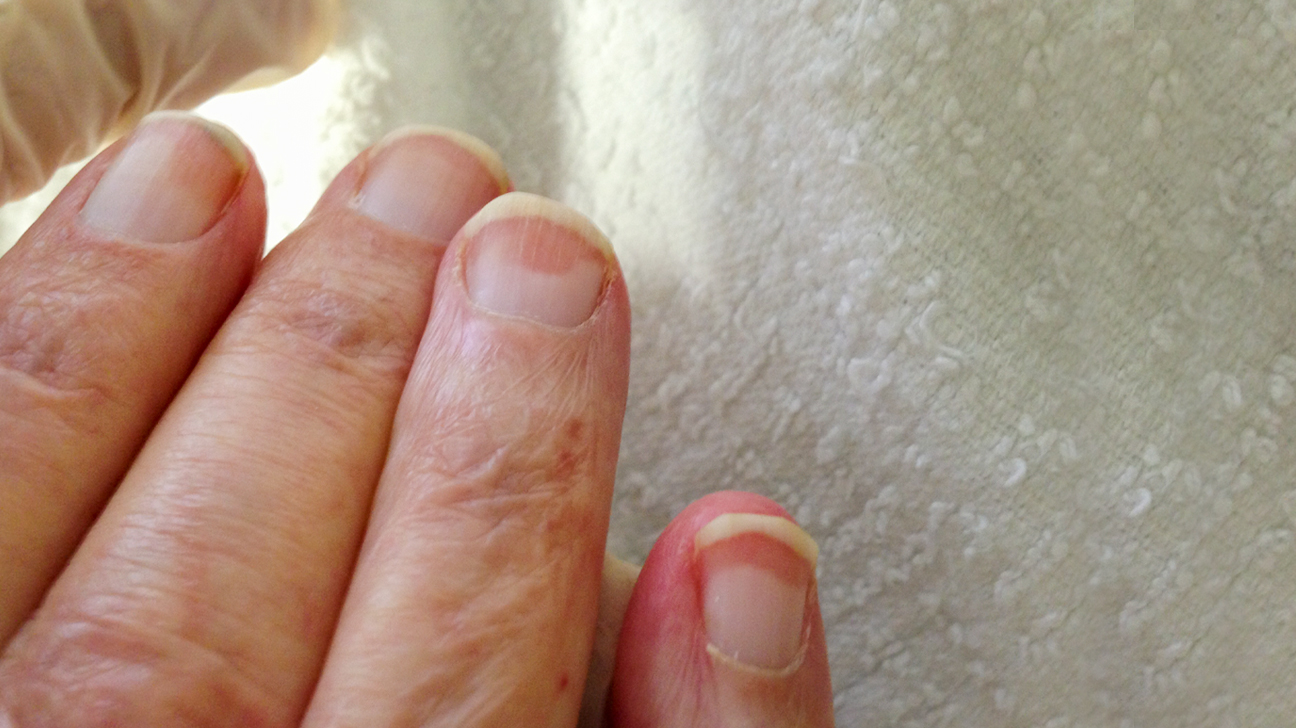 Terry S Nails Pictures Causes Treatment Vs Lindsay S Nails