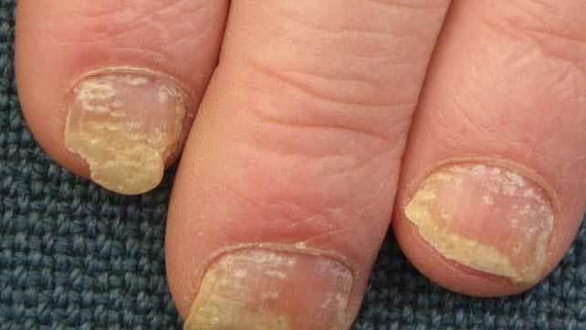 nail psoriasis nhs