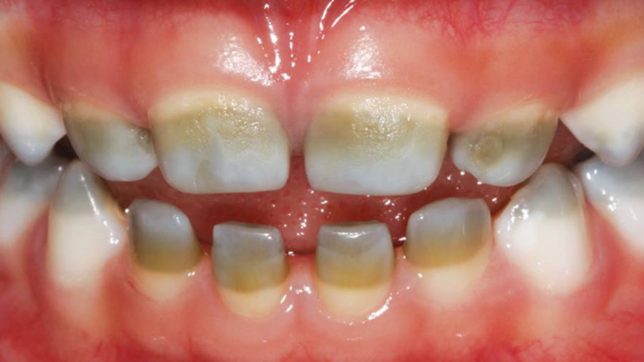 Green Tooth Causes Pictures Treatment And Prevention