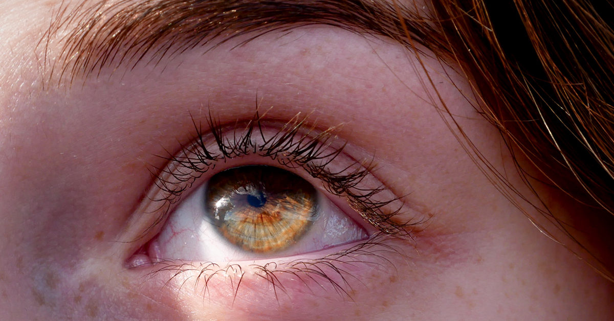 How to Fix a Lazy Eye: Treatment Strategies
