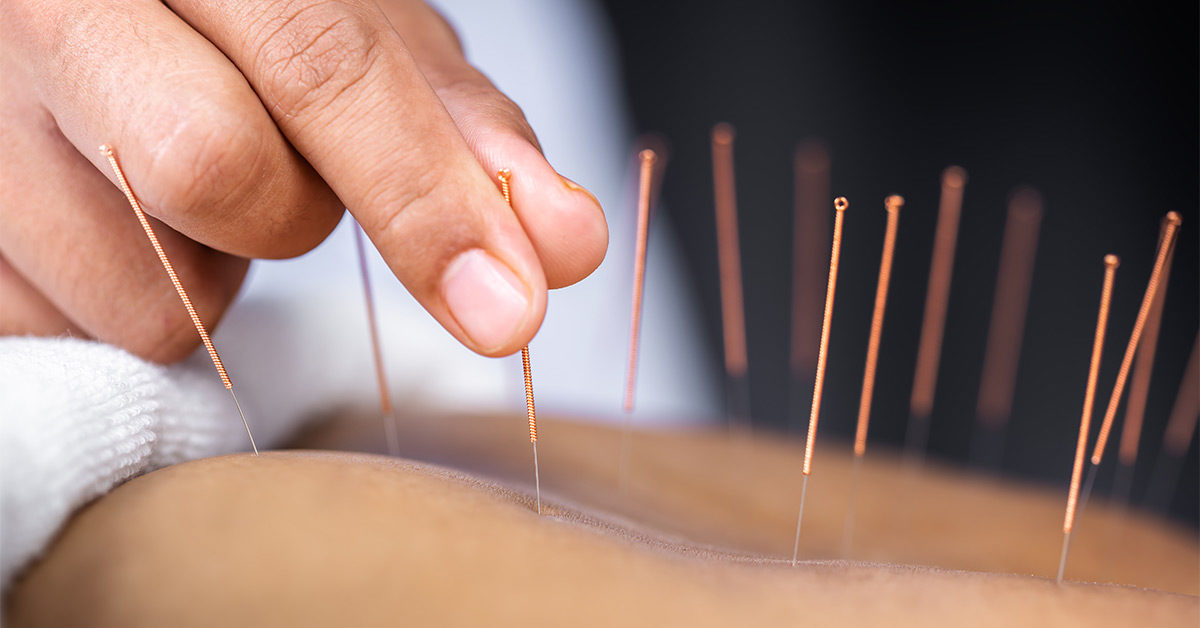 Acupuncture May Be Effective in Reducing Indigestion Symptoms